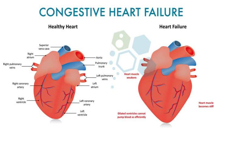 Gagal Jantung: Ancaman Pusat Kehidupan