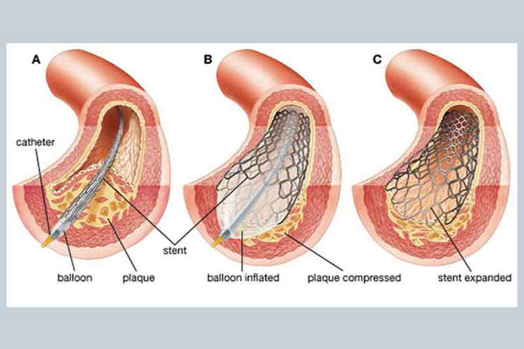 Pahami Prosedur dan Risiko Operasi Ring Jantung